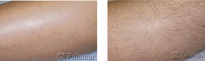הסרת שיער לפני ואחרי בטכנולוגיית VECTUS