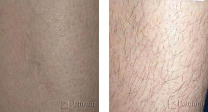 הסרת שיער לפני ואחרי Palomar