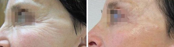 תוצאות טיפול פנים בידית InMode Forma