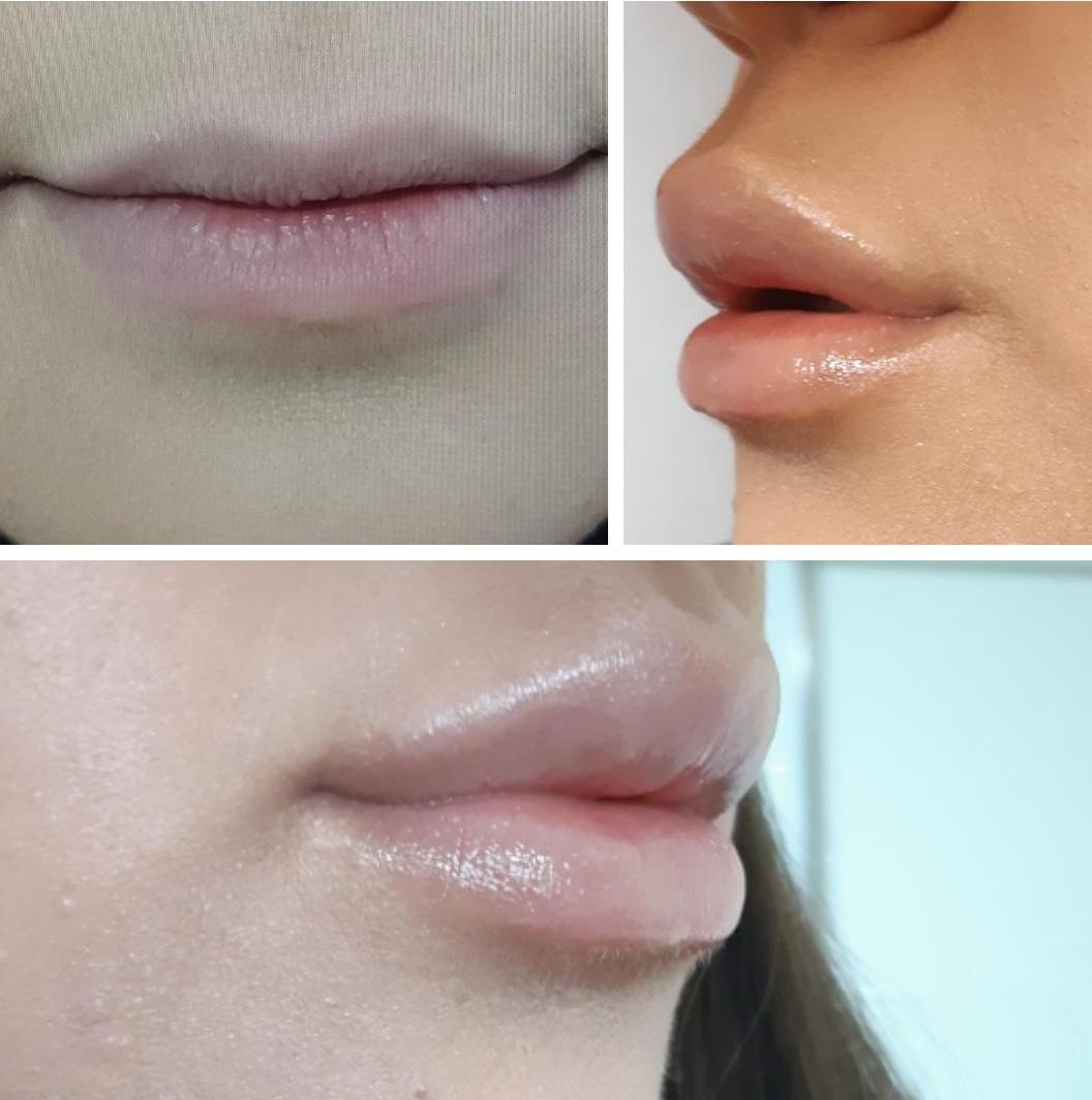 תוצאות טיפול הזרקת חומצה היאלורונית בשפתיים